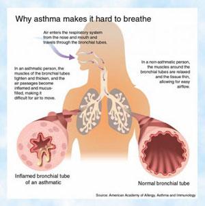 Asma: nel XXI° secolo ancora i bambini sono sempre più a rischio